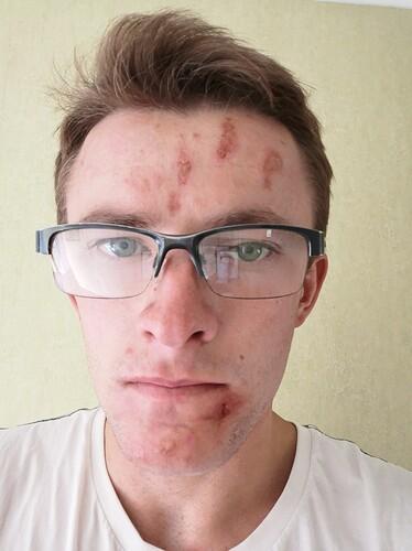 Skin%203