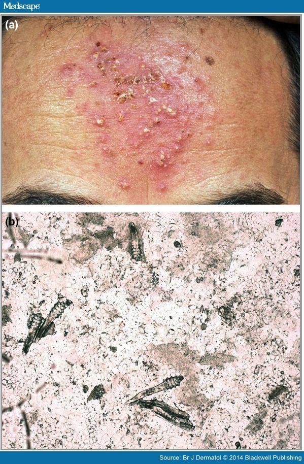 Mite infestation on human skin, symptoms, feeding ...