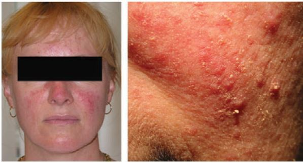Stop Demodex Mask for itchy face, neck and body due to ...